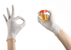 gloved hand hold urine sample signing okay
