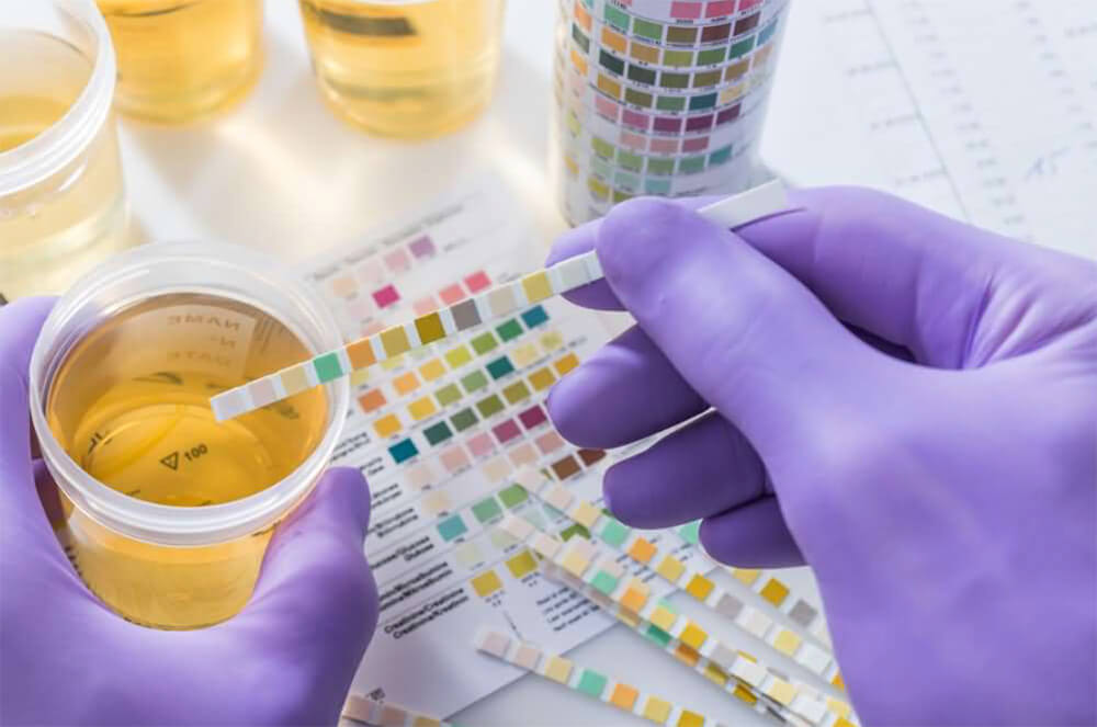 What is a False Positive Urine Test