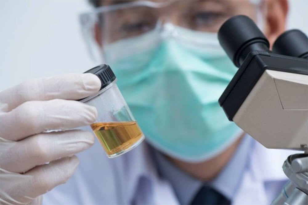 What Causes a False Positive Urine Test